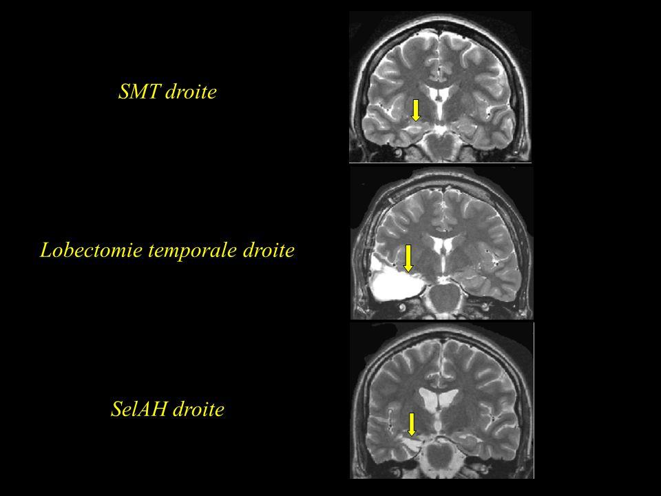 SMT droite Lobectomie temporale droite SelAH droite