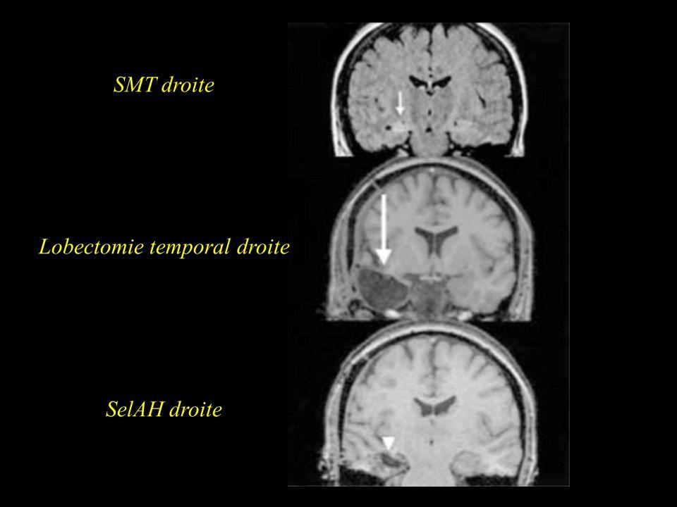 SMT droite Lobectomie temporal droite SelAH droite