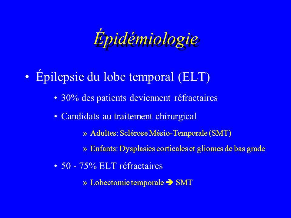 Épidémiologie Épilepsie du lobe temporal (ELT) 30% des patients deviennent réfractaires Candidats au traitement chirurgical »Adultes: Sclérose Mésio-T