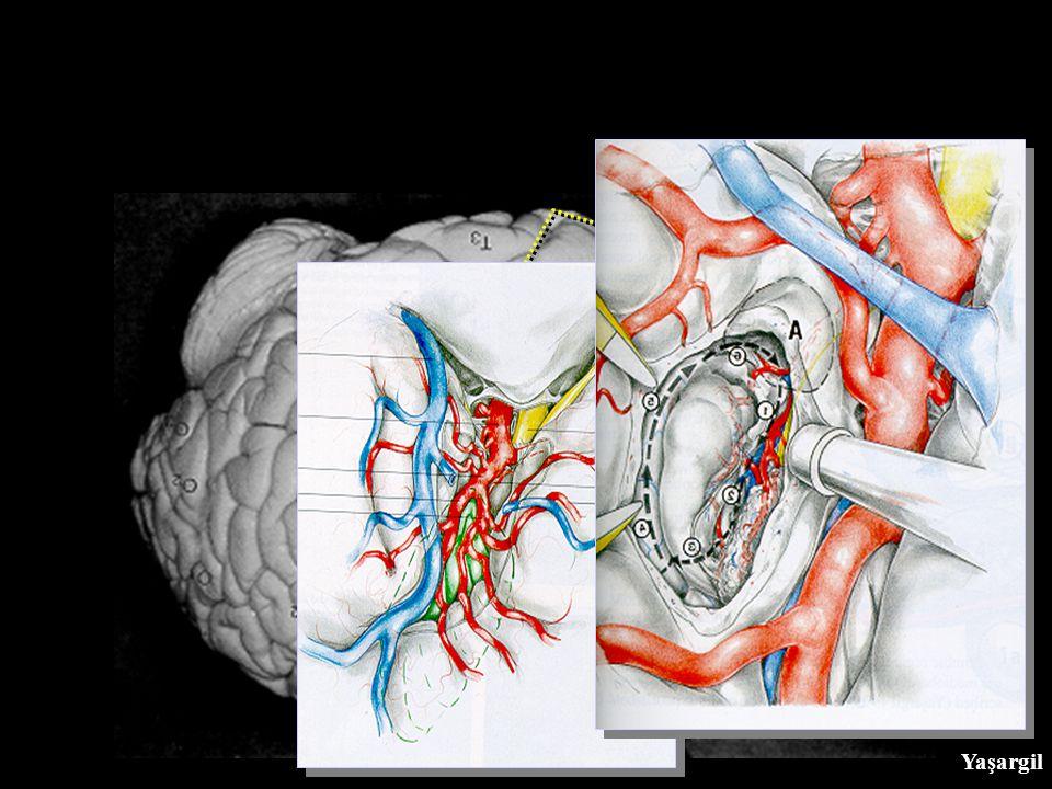 Notre Série Amygdalo-hippocampectomie (AH): 32 pts (23 f, 9 m), y compris 26 SelAH SelAH pour ELT: 26 pts (21 f, 5 m) âge: 8 - 54 ans (moyenne : 32 yr) réfractaire à plusieurs AntiEs foyer unilatéral 20 SelAH gauches