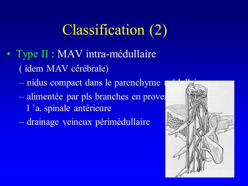 Classification (2) Type II : MAV intra-médullaire ( idem MAV cérébrale) –nidus compact dans le parenchyme médullaire –alimentée par pls branches en provenance de l a.