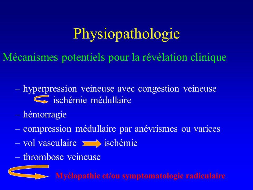 Physiopathologie Mécanismes potentiels pour la révélation clinique –hyperpression veineuse avec congestion veineuse ischémie médullaire –hémorragie –compression médullaire par anévrismes ou varices –vol vasculaireischémie –thrombose veineuse Myélopathie et/ou symptomatologie radiculaire