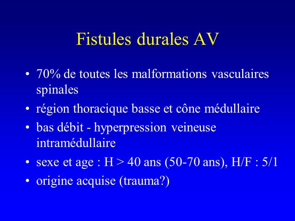 Fistules durales AV 70% de toutes les malformations vasculaires spinales région thoracique basse et cône médullaire bas débit - hyperpression veineuse intramédullaire sexe et age : H > 40 ans (50-70 ans), H/F : 5/1 origine acquise (trauma?)