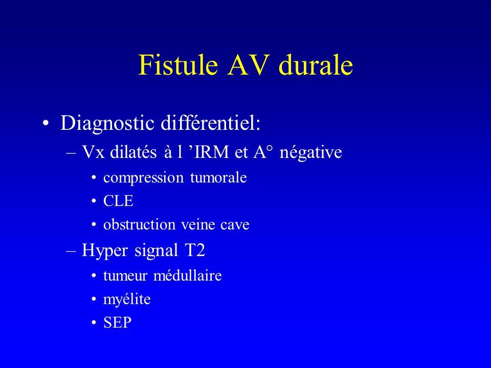 Diagnostic différentiel: –Vx dilatés à l IRM et A° négative compression tumorale CLE obstruction veine cave –Hyper signal T2 tumeur médullaire myélite SEP