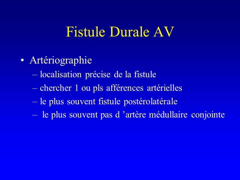 Fistule Durale AV Artériographie –localisation précise de la fistule –chercher 1 ou pls afférences artérielles –le plus souvent fistule postérolatérale – le plus souvent pas d artère médullaire conjointe