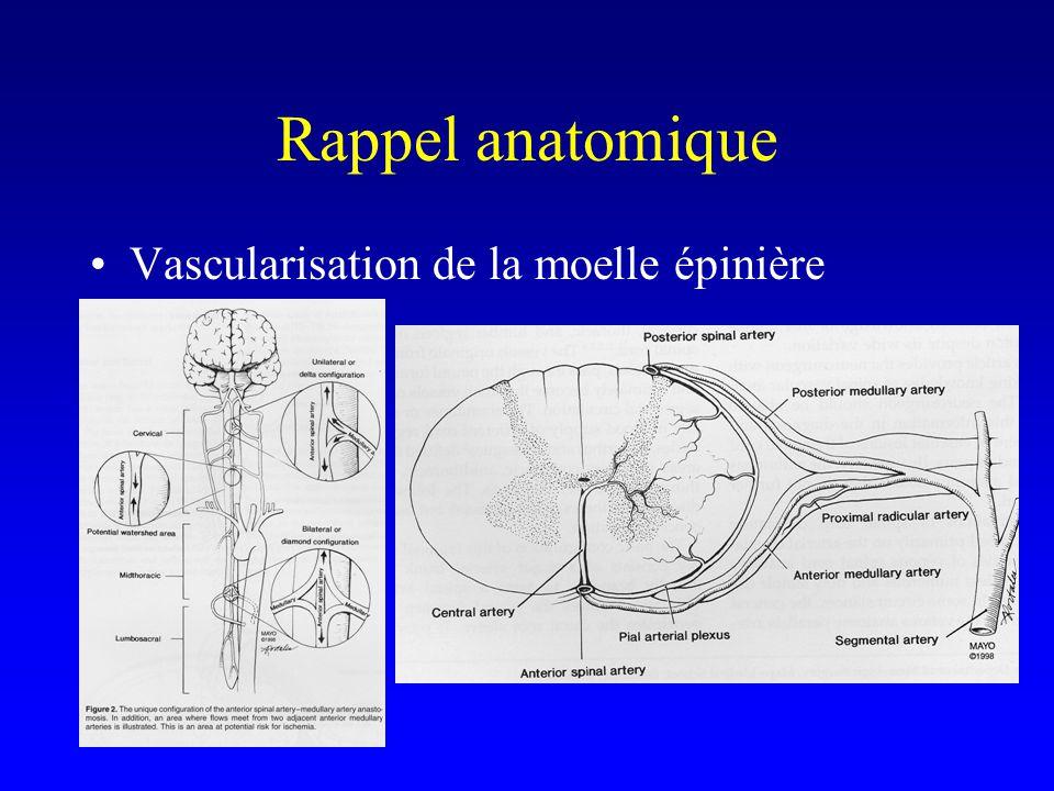 Diagnostic radiologique Myélographie.