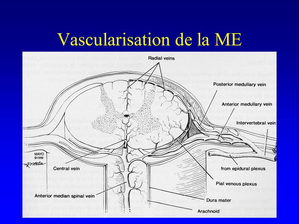 Type IV Fistules Périmédullaires IVA IVBIVC Située à la surface piale, topo ventrale ou latérale, ne pénètre pas la moelle, drainage veineux périmédullaire