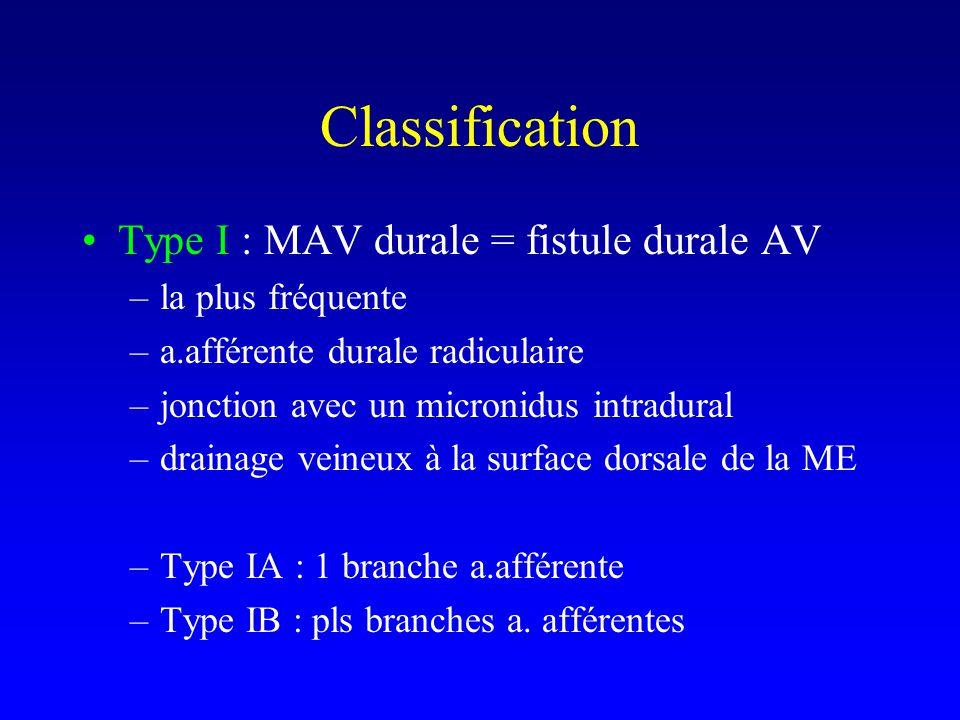 Type I : MAV durale = fistule durale AV –la plus fréquente –a.afférente durale radiculaire –jonction avec un micronidus intradural –drainage veineux à la surface dorsale de la ME –Type IA : 1 branche a.afférente –Type IB : pls branches a.