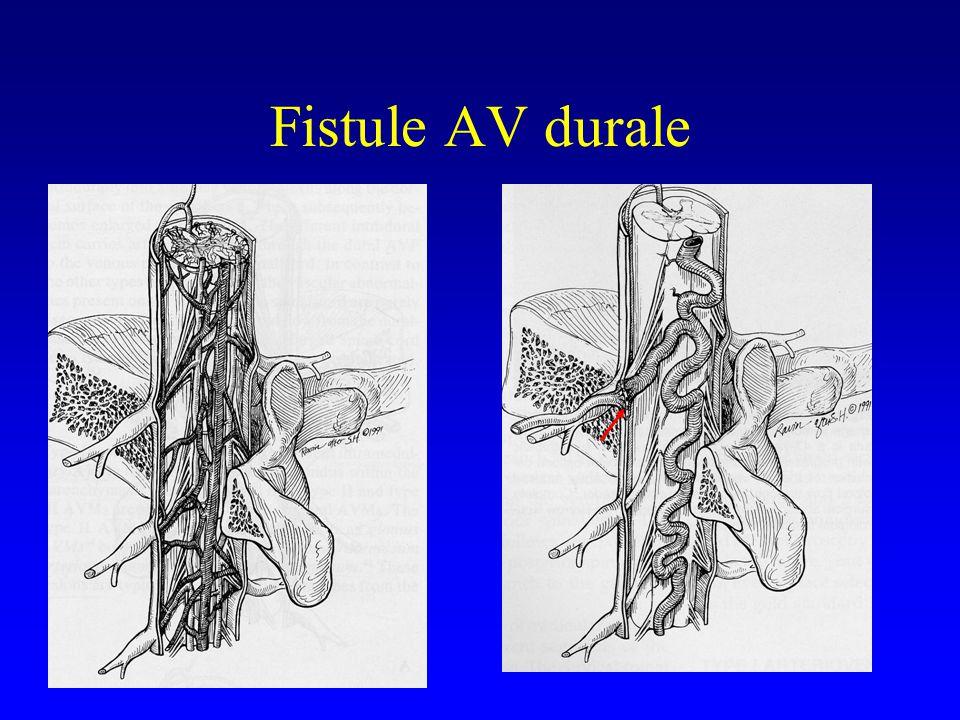 Fistule AV Durale Eskander et al, J. Neurosurg, 2002 –26 patients : 23E°, 3Chir 9 échecs d E° (39%)