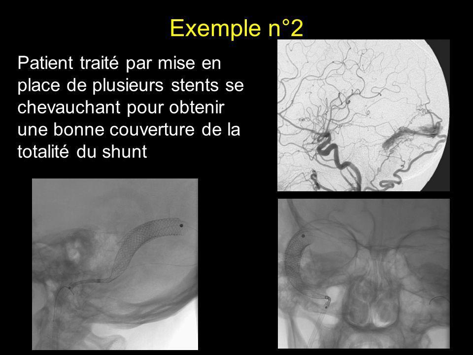 Exemple n°2 Patient traité par mise en place de plusieurs stents se chevauchant pour obtenir une bonne couverture de la totalité du shunt