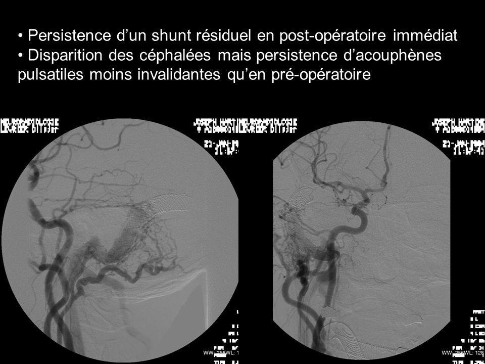 Persistence dun shunt résiduel en post-opératoire immédiat Disparition des céphalées mais persistence dacouphènes pulsatiles moins invalidantes quen p