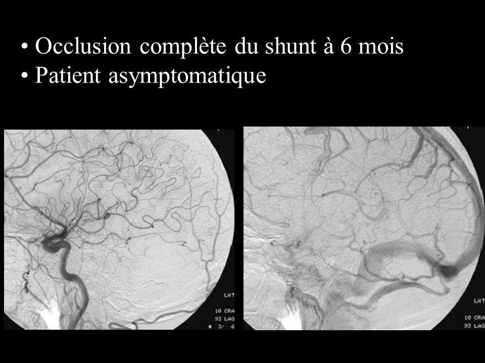 Occlusion complète du shunt à 6 mois Patient asymptomatique