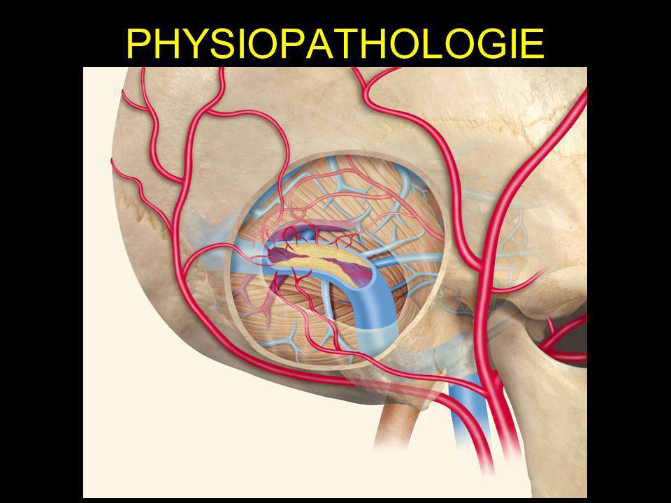 OPTIONS THERAPEUTIQUES Chirurgie –Ligature artérielle, squelettisation du sinus –Résection du sinus fistuleux –Limites: difficultés techniques, morbidité, récidive Embolisation artérielle –Colle ou particules –Limites: recrutement dautres afférences=récidive Embolisation par voie veineuse rétrograde –Exclusion du sinus fistuleux par occlusion endoluminale –Limites: sacrifice dun sinus veineux