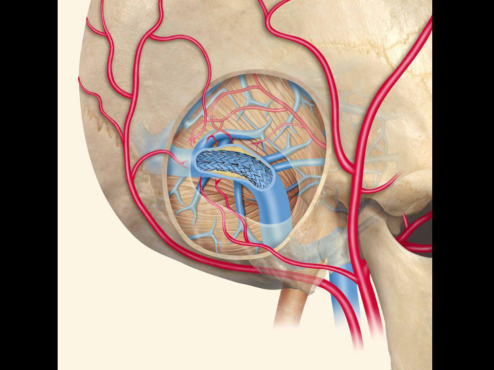 Patients 10 patients consécutifs de 02/2001 à 05/2003 Présentation clinique –Céphalées (10), acouphènes pulsatiles (80), HTIC (7) –Déficit neurologique (2), signes visuels (5) Localisation –Sinus transverse (6), Sinus sigmoïde (3), Torcular et sinus occipital (1) Grade radiologique (Classification Merland-Djindjian) –2 type I, 6 type II (5 IIa, 1 IIb), 2 type IV Traitements antérieurs: 3 patients (2 ETA, 1 ETV) Type de stent: Cobalt Stainless steel, Nitinol