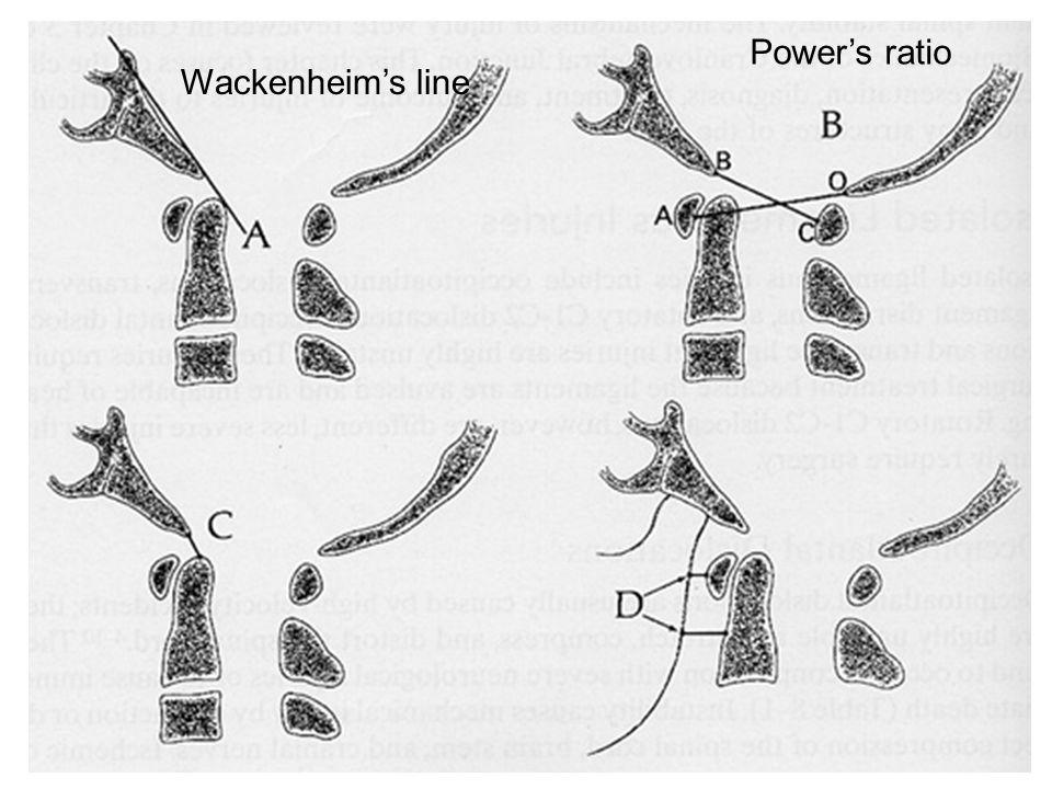 Wackenheims line Powers ratio