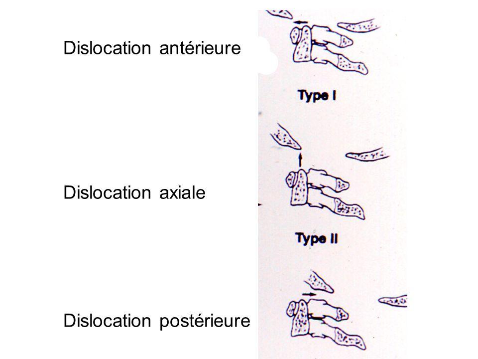 Dislocation antérieure Dislocation axiale Dislocation postérieure