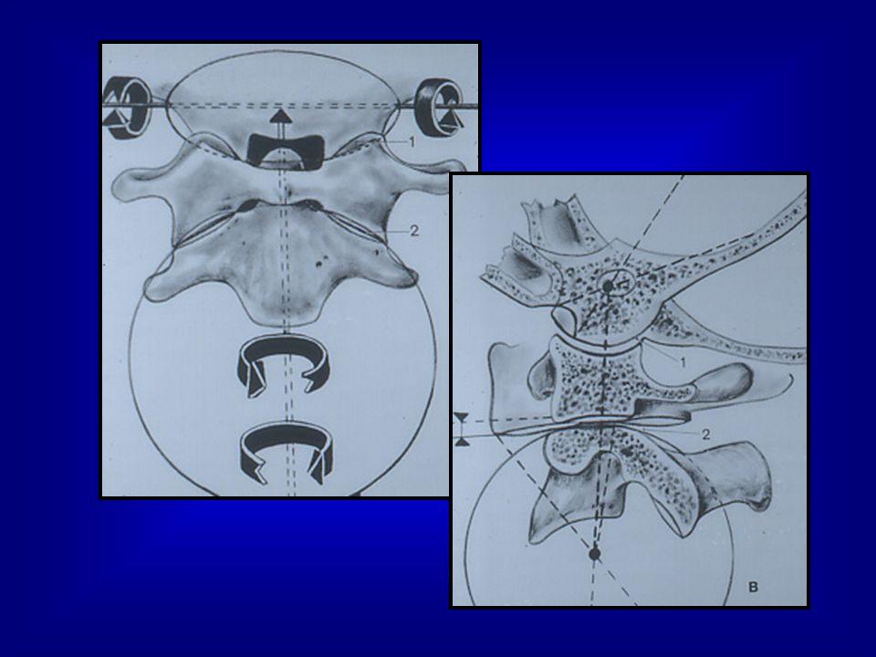 Fractures de latlas 4 à 15 % des fractures cervicales 1 à 3% des fractures du rachis 4H/1F 50% isolée Signes neuro: décés 4 à 15 % des fractures cervicales 1 à 3% des fractures du rachis 4H/1F 50% isolée Signes neuro: décés