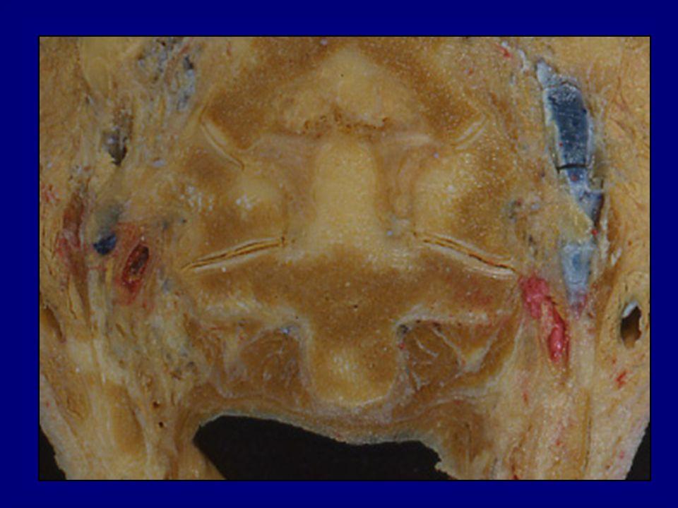 Chamberlains line Mc Gregors line Mc Raes lineWackenheims line Digastric line Bimastoid line Atlanto-occipital angle
