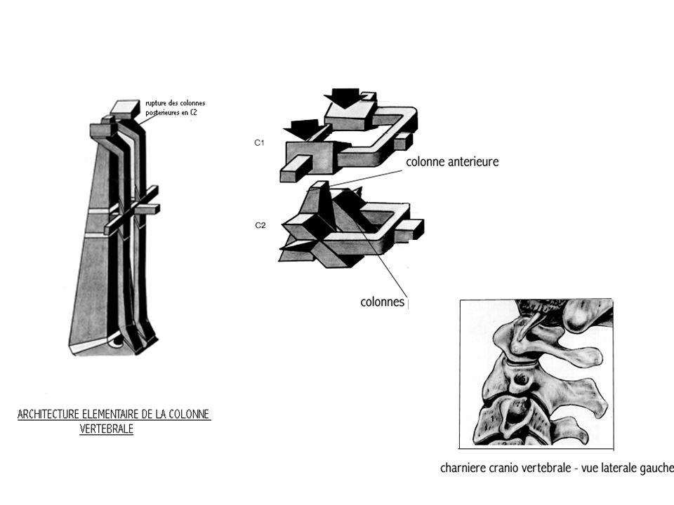 Hangman fracture Type IType IIType III Immobilisation externe externeImmobilisation Stabilisation C1C2 Réduitenon réduite