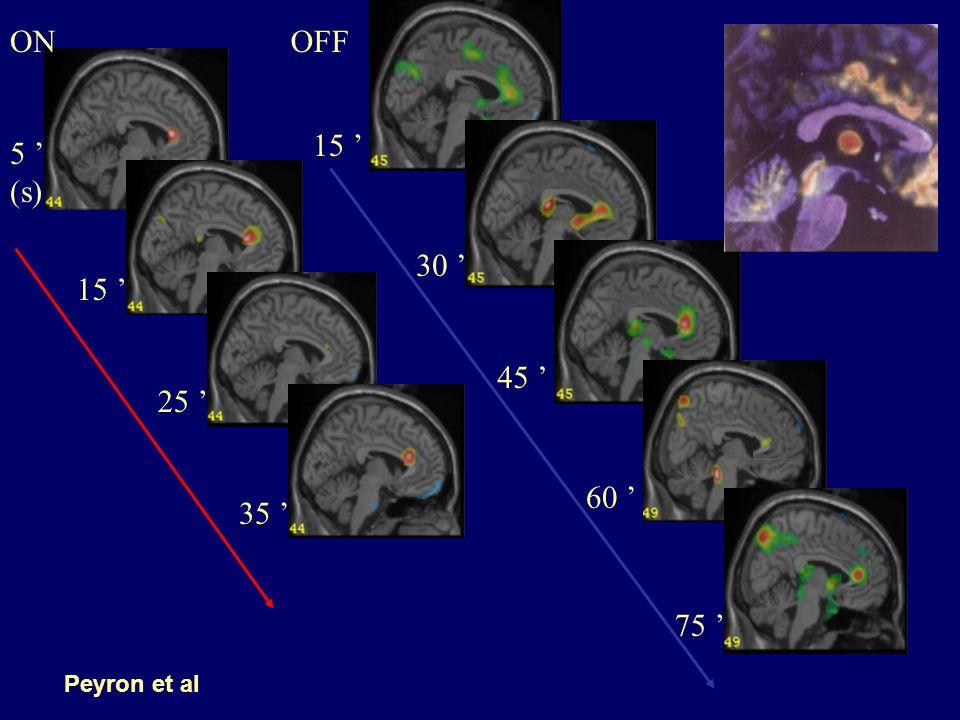 Objectif de cette étude Tester les éventuelles modifications du système opioïde endogène induites par la Stimulation du Cortex Pré-Central (SCPC) à visée antalgique