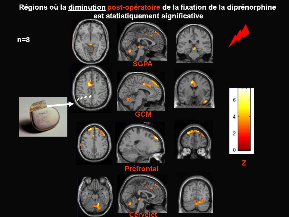 SGPA GCM Préfrontal Cervelet n=8 Régions où la diminution post-opératoire de la fixation de la diprénorphine est statistiquement significative Z
