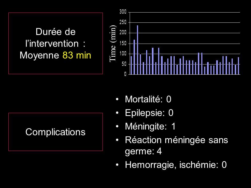 Durée de lintervention : Moyenne 83 min Time (min) Mortalité: 0 Epilepsie: 0 Méningite: 1 Réaction méningée sans germe: 4 Hemorragie, ischémie: 0 Comp