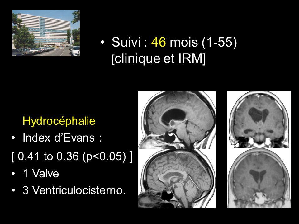 Suivi : 46 mois (1-55) [ clinique et IRM] Hydrocéphalie Index dEvans : [ 0.41 to 0.36 (p<0.05) ] 1 Valve 3 Ventriculocisterno.