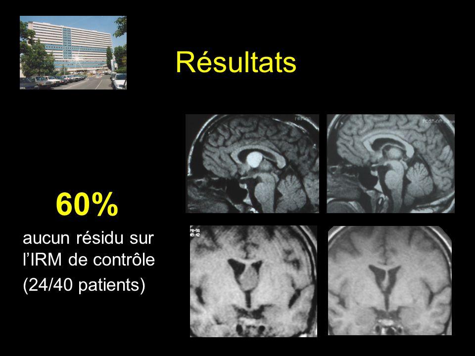 Résultats 60% aucun résidu sur lIRM de contrôle (24/40 patients)