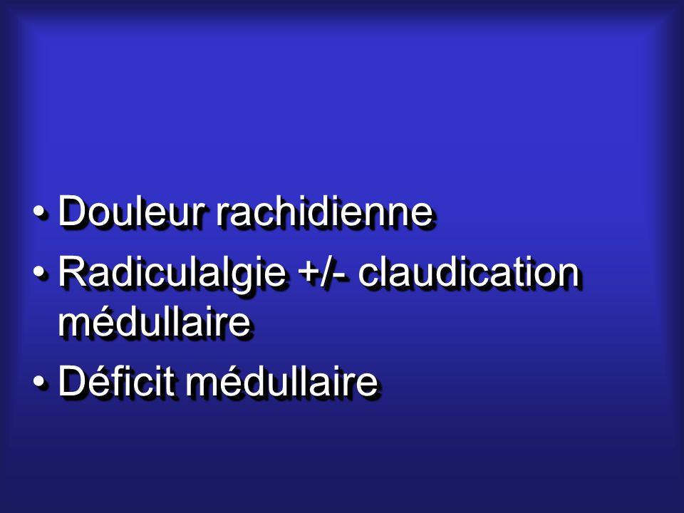 Douleur rachidienneDouleur rachidienne Radiculalgie +/- claudication médullaireRadiculalgie +/- claudication médullaire Déficit médullaireDéficit médullaire Douleur rachidienneDouleur rachidienne Radiculalgie +/- claudication médullaireRadiculalgie +/- claudication médullaire Déficit médullaireDéficit médullaire