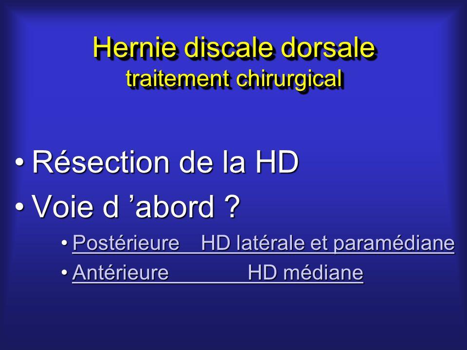 Hernie discale dorsale traitement chirurgical Résection de la HDRésection de la HD Voie d abord Voie d abord .