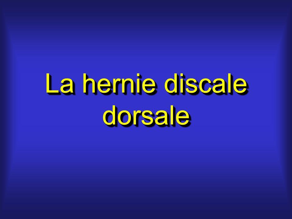 La hernie discale dorsale