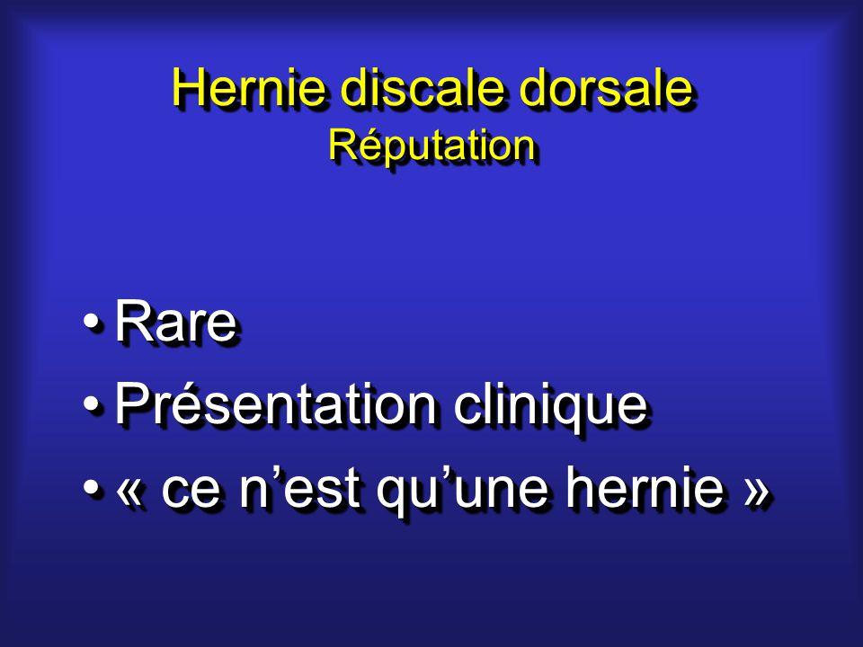 Hernie discale dorsale Réputation RareRare Présentation cliniquePrésentation clinique « ce nest quune hernie »« ce nest quune hernie » RareRare Présentation cliniquePrésentation clinique « ce nest quune hernie »« ce nest quune hernie »