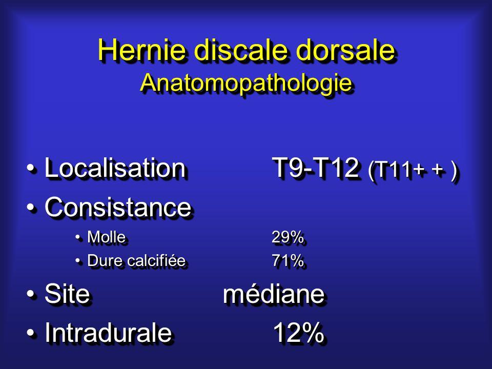 Hernie discale dorsale Anatomopathologie LocalisationT9-T12 (T11+ + )LocalisationT9-T12 (T11+ + ) ConsistanceConsistance Molle29%Molle29% Dure calcifiée71%Dure calcifiée71% SitemédianeSitemédiane Intradurale12%Intradurale12% LocalisationT9-T12 (T11+ + )LocalisationT9-T12 (T11+ + ) ConsistanceConsistance Molle29%Molle29% Dure calcifiée71%Dure calcifiée71% SitemédianeSitemédiane Intradurale12%Intradurale12%