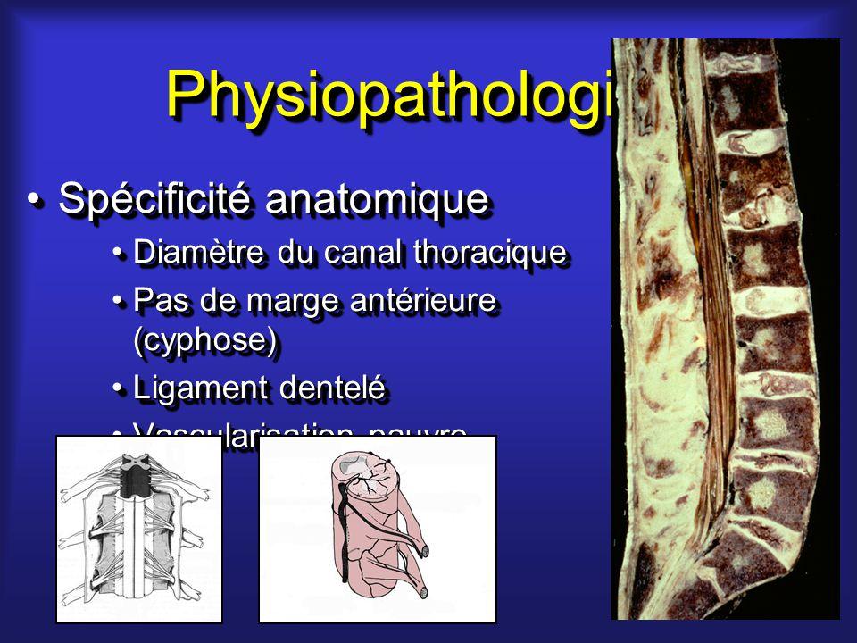 PhysiopathologiePhysiopathologie Spécificité anatomiqueSpécificité anatomique Diamètre du canal thoraciqueDiamètre du canal thoracique Pas de marge antérieure (cyphose)Pas de marge antérieure (cyphose) Ligament denteléLigament dentelé Vascularisation pauvreVascularisation pauvre Spécificité anatomiqueSpécificité anatomique Diamètre du canal thoraciqueDiamètre du canal thoracique Pas de marge antérieure (cyphose)Pas de marge antérieure (cyphose) Ligament denteléLigament dentelé Vascularisation pauvreVascularisation pauvre