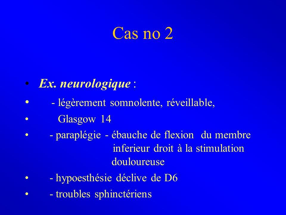 Cas no 2 Ex. neurologique : - légèrement somnolente, réveillable, Glasgow 14 - paraplégie - ébauche de flexion du membre inferieur droit à la stimulat