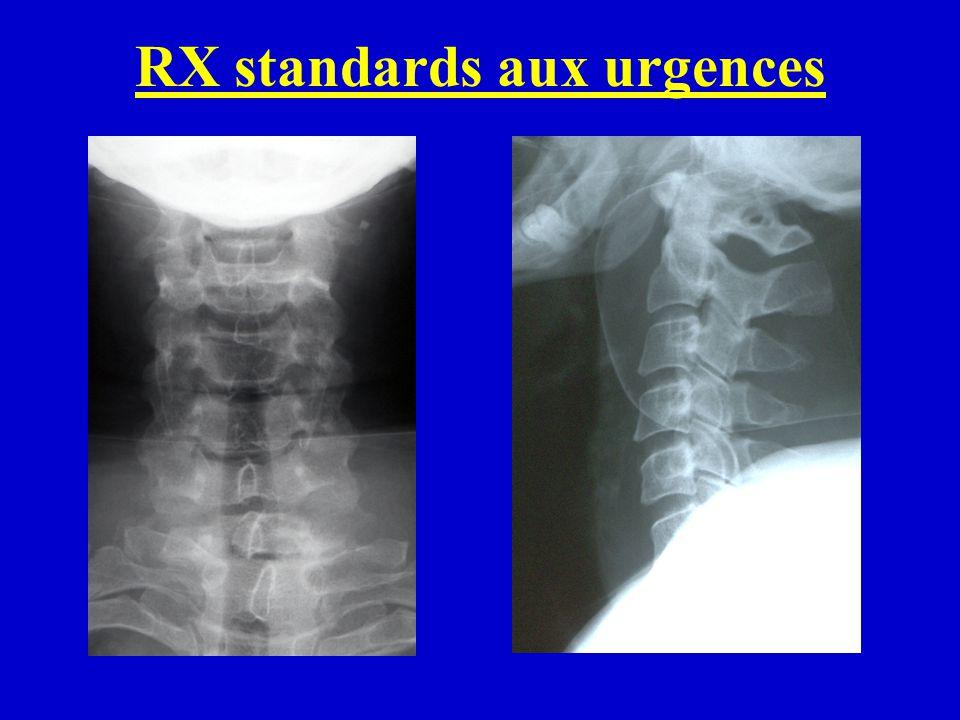 Scanner Thorax aux urgences