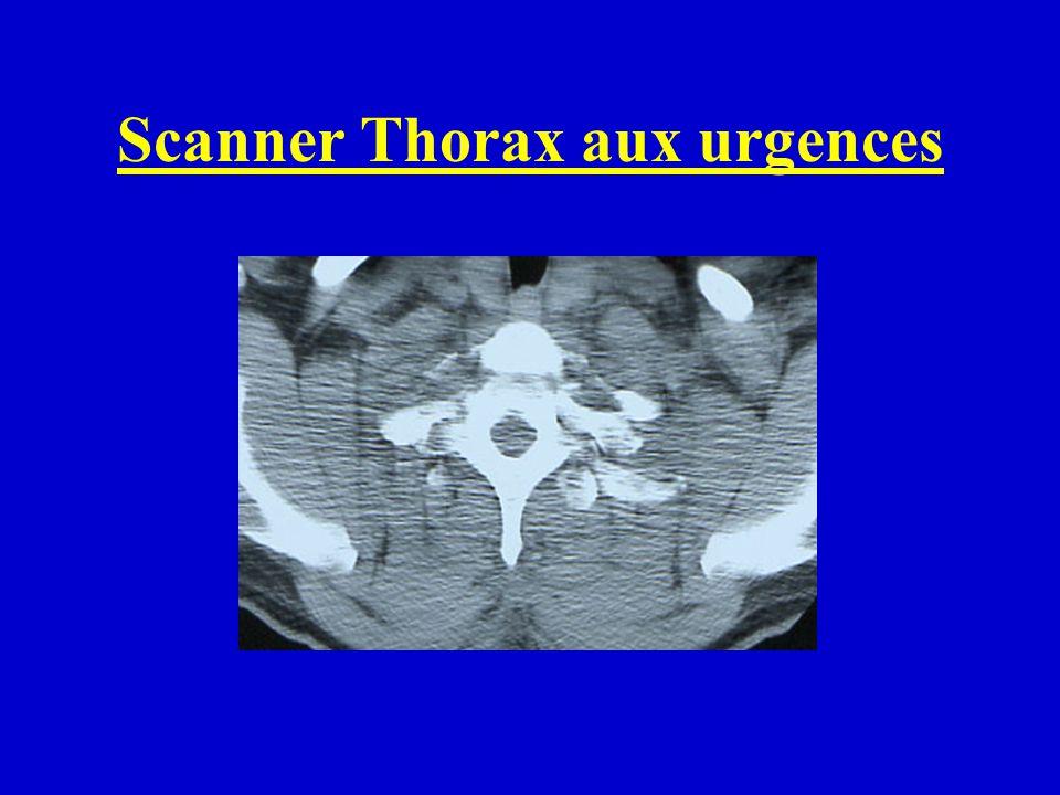 Opéré en urgence: Bloc CMF pour trauma facial admission service CMF A J3 aggravation neurologique: tableau tétraplégie C7 Scanner rachis : jonction cervico-dorsale