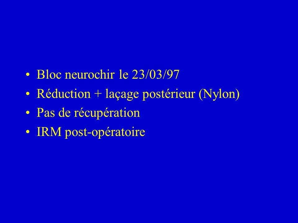 Bloc neurochir le 23/03/97 Réduction + laçage postérieur (Nylon) Pas de récupération IRM post-opératoire