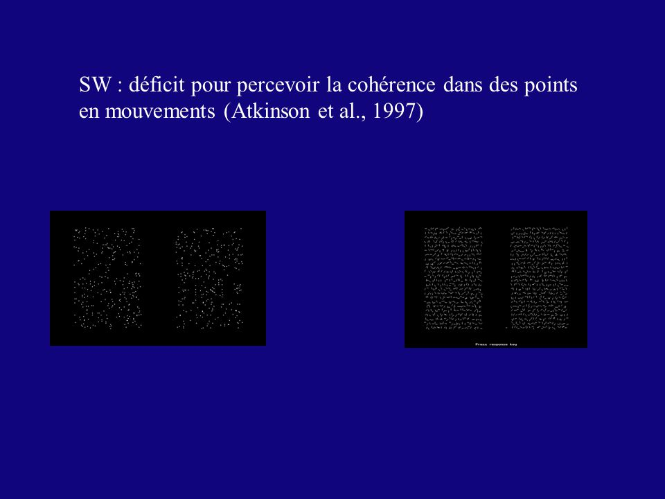 SW : déficit pour percevoir la cohérence dans des points en mouvements (Atkinson et al., 1997)