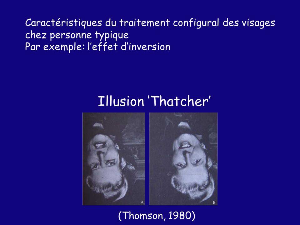 Illusion Thatcher (Thomson, 1980) Caractéristiques du traitement configural des visages chez personne typique Par exemple: leffet dinversion