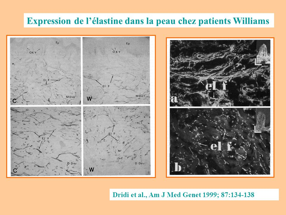 Dridi et al., Am J Med Genet 1999; 87:134-138 Expression de lélastine dans la peau chez patients Williams