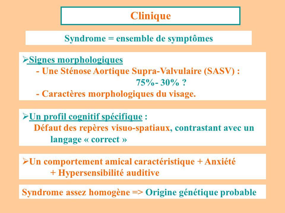 Clinique Syndrome = ensemble de symptômes Signes morphologiques - Une Sténose Aortique Supra-Valvulaire (SASV) : 75%- 30% ? - Caractères morphologique