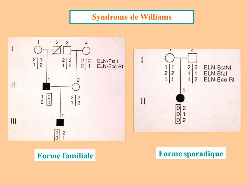 Le Syndrome de Williams est dû à une microdélétion du chromosome 7 : 7q11.23