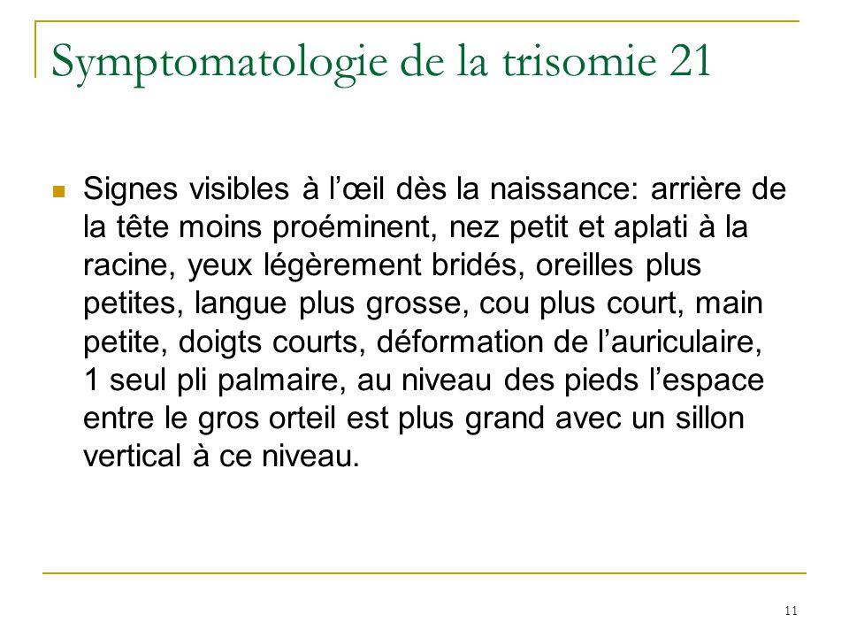 11 Symptomatologie de la trisomie 21 Signes visibles à lœil dès la naissance: arrière de la tête moins proéminent, nez petit et aplati à la racine, ye