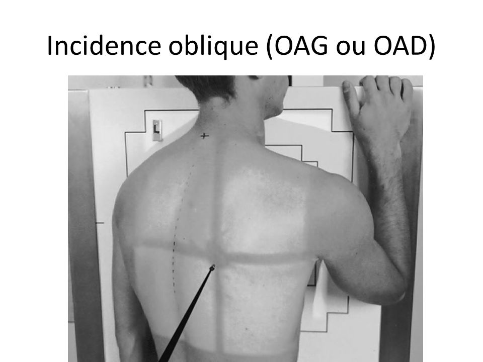 Incidence oblique (OAG ou OAD)