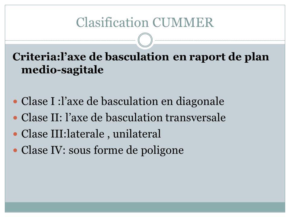 Clasification CUMMER Criteria:laxe de basculation en raport de plan medio-sagitale Clase I :laxe de basculation en diagonale Clase II: laxe de bascula