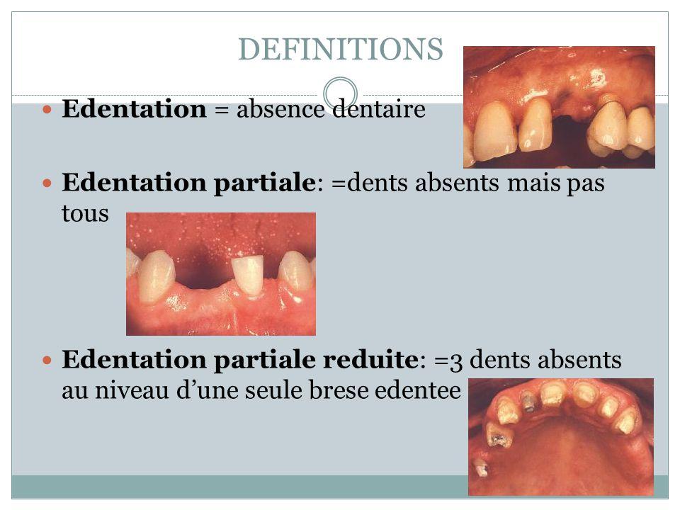 Clasifications EDENTATION TOTALE (aucune dent present) EDENTATION SubTOTALE( 3 dents presents) EDENTATION PARTIALE (max.