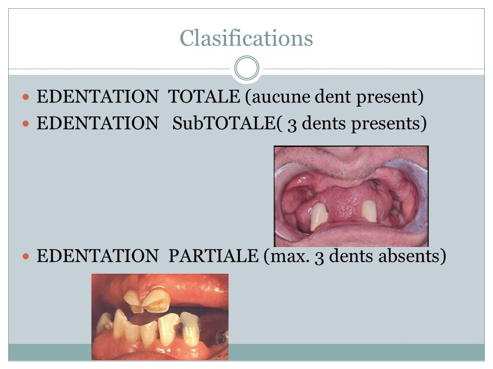 Clasifications EDENTATION TOTALE (aucune dent present) EDENTATION SubTOTALE( 3 dents presents) EDENTATION PARTIALE (max. 3 dents absents)