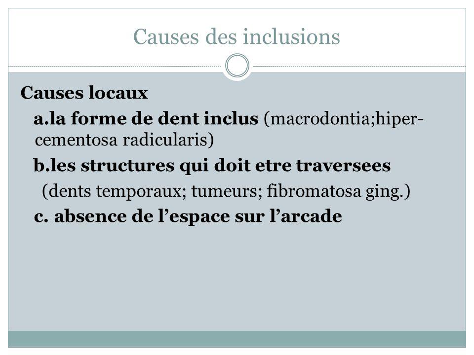 Causes des inclusions Causes locaux a.la forme de dent inclus (macrodontia;hiper- cementosa radicularis) b.les structures qui doit etre traversees (de