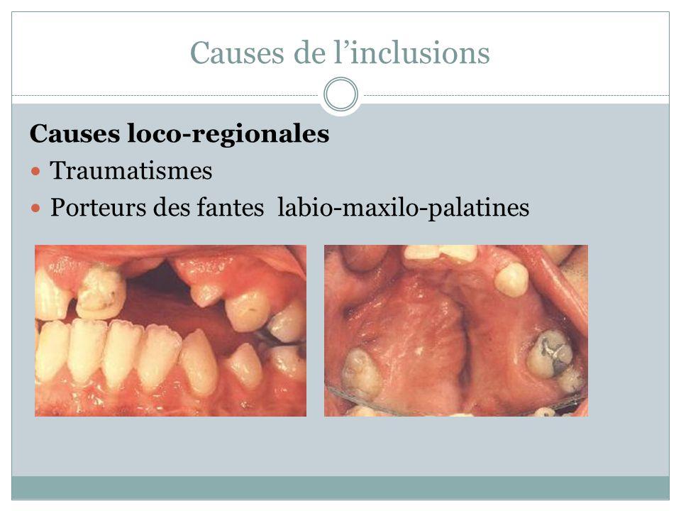 Causes de linclusions Causes loco-regionales Traumatismes Porteurs des fantes labio-maxilo-palatines